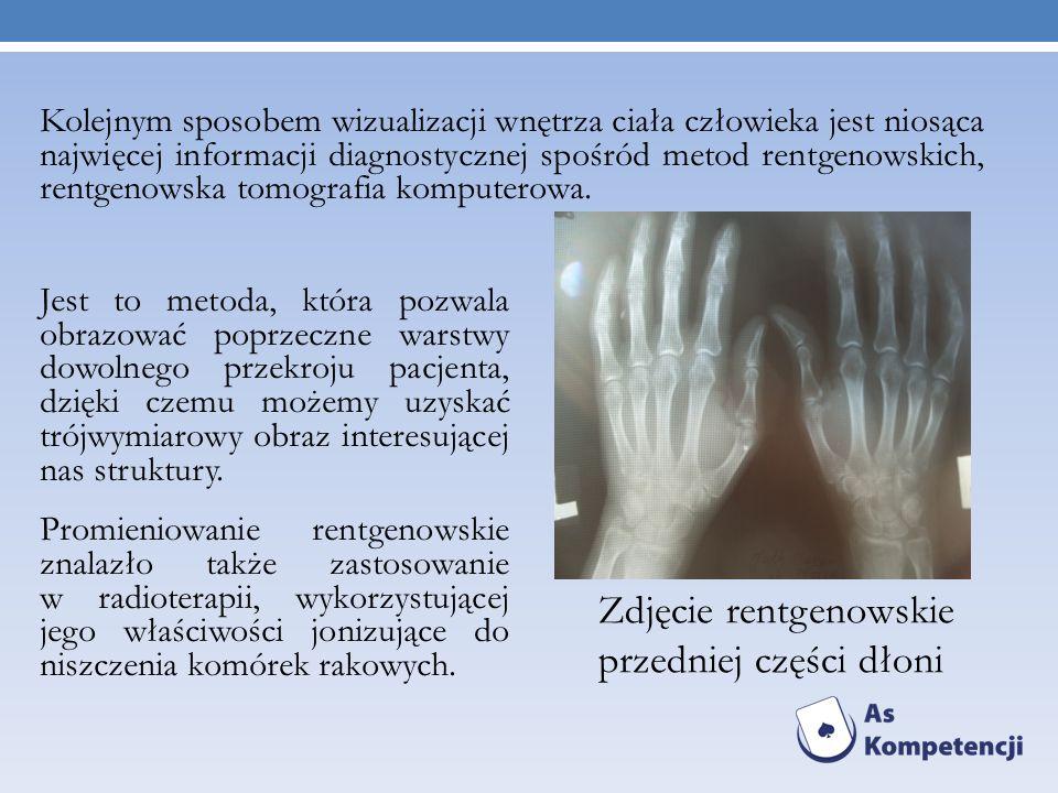 Zdjęcie rentgenowskie przedniej części dłoni