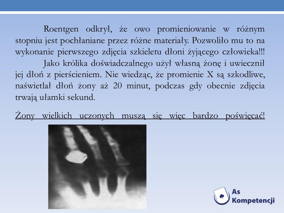 Roentgen odkrył, że owo promieniowanie w różnym stopniu jest pochłaniane przez różne materiały. Pozwoliło mu to na wykonanie pierwszego zdjęcia szkieletu dłoni żyjącego człowieka!!! Jako królika doświadczalnego użył własną żonę i uwiecznił jej dłoń z pierścieniem. Nie wiedząc, że promienie X są szkodliwe, naświetlał dłoń żony aż 20 minut, podczas gdy obecnie zdjęcia trwają ułamki sekund. Żony wielkich uczonych muszą się więc bardzo poświęcać!