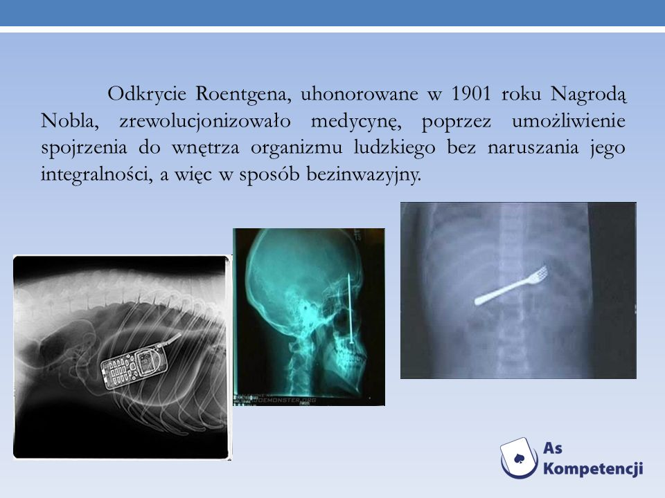 Odkrycie Roentgena, uhonorowane w 1901 roku Nagrodą Nobla, zrewolucjonizowało medycynę, poprzez umożliwienie spojrzenia do wnętrza organizmu ludzkiego bez naruszania jego integralności, a więc w sposób bezinwazyjny.