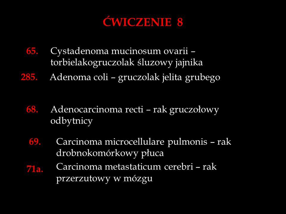 ĆWICZENIE 8 65. Cystadenoma mucinosum ovarii – torbielakogruczolak śluzowy jajnika. 285. Adenoma coli – gruczolak jelita grubego.