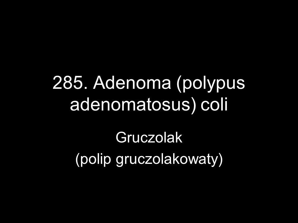 285. Adenoma (polypus adenomatosus) coli