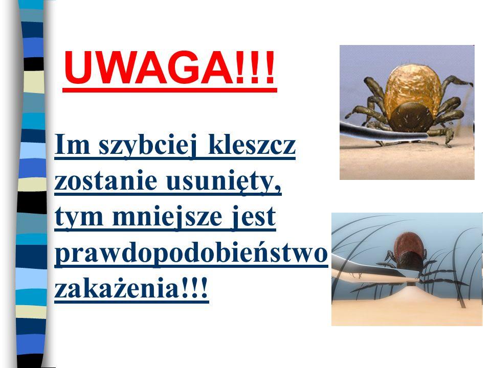 UWAGA!!! Im szybciej kleszcz zostanie usunięty, tym mniejsze jest prawdopodobieństwo zakażenia!!!