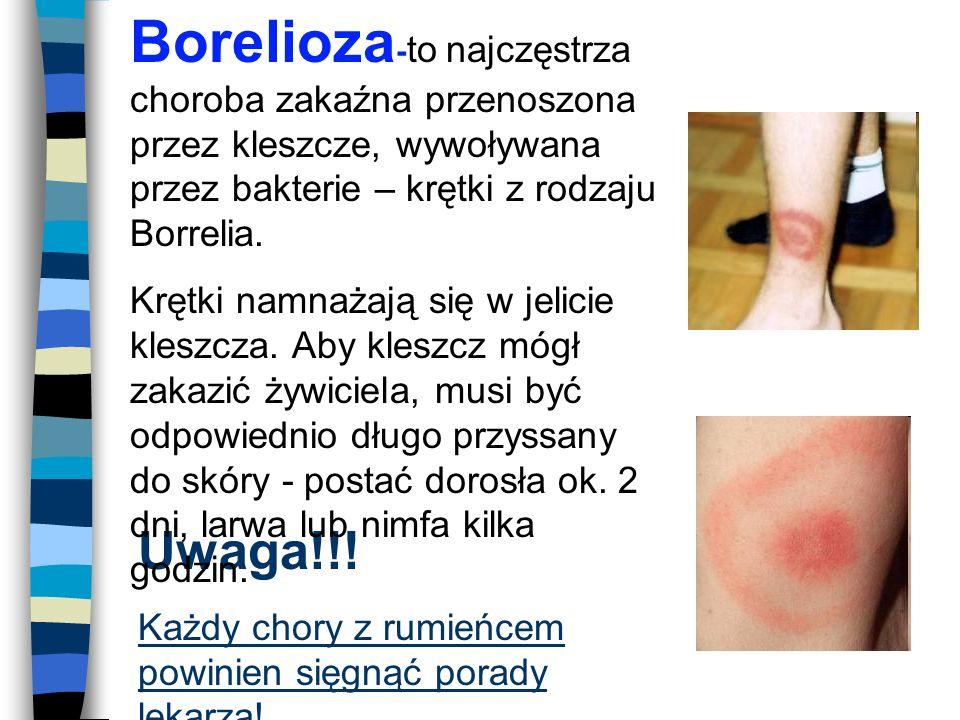 Borelioza-to najczęstrza choroba zakaźna przenoszona przez kleszcze, wywoływana przez bakterie – krętki z rodzaju Borrelia.