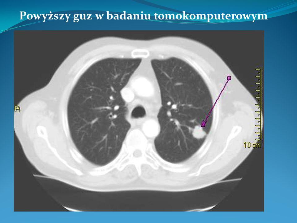 Powyższy guz w badaniu tomokomputerowym