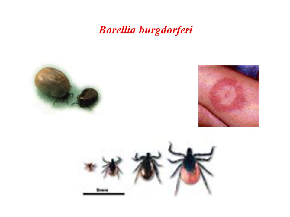Borellia burgdorferi
