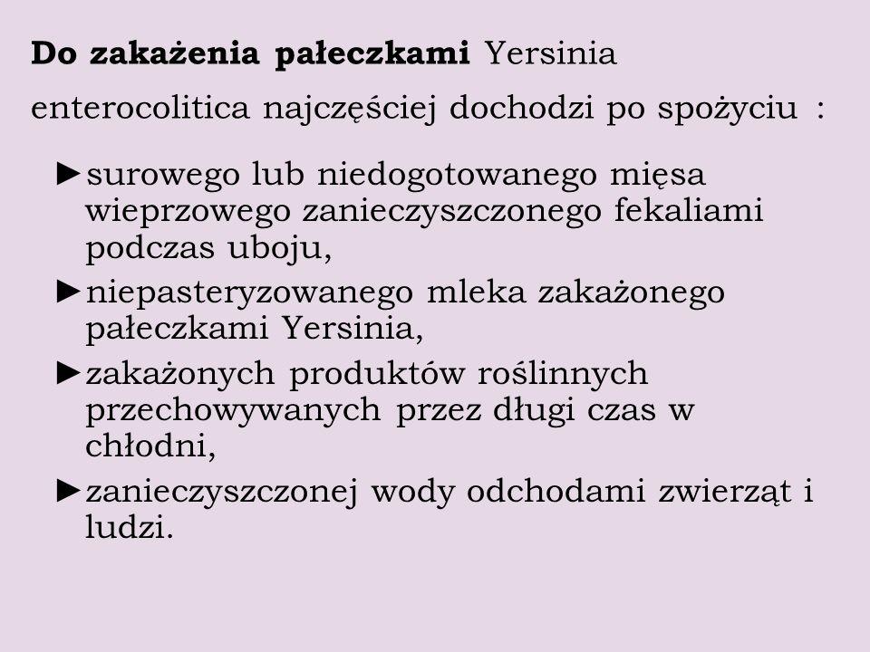 Do zakażenia pałeczkami Yersinia enterocolitica najczęściej dochodzi po spożyciu :