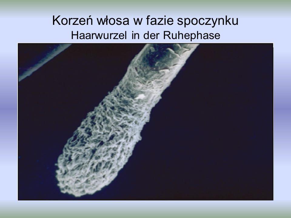Korzeń włosa w fazie spoczynku Haarwurzel in der Ruhephase