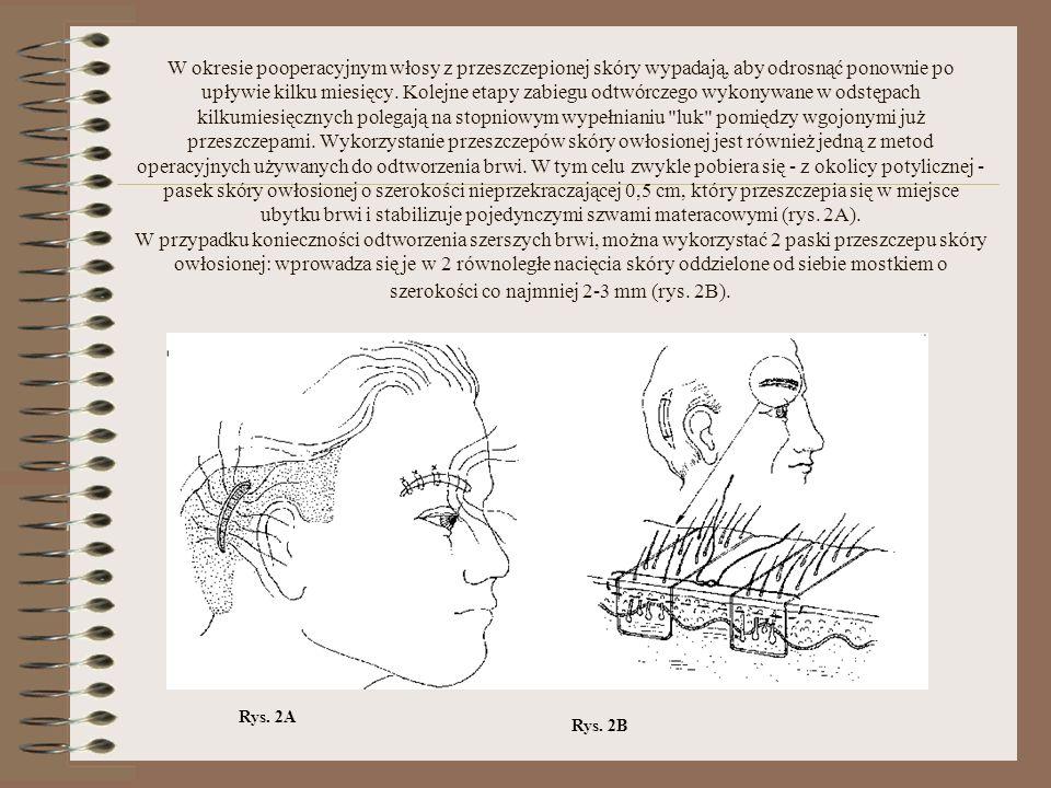 W okresie pooperacyjnym włosy z przeszczepionej skóry wypadają, aby odrosnąć ponownie po upływie kilku miesięcy. Kolejne etapy zabiegu odtwórczego wykonywane w odstępach kilkumiesięcznych polegają na stopniowym wypełnianiu luk pomiędzy wgojonymi już przeszczepami. Wykorzystanie przeszczepów skóry owłosionej jest również jedną z metod operacyjnych używanych do odtworzenia brwi. W tym celu zwykle pobiera się - z okolicy potylicznej - pasek skóry owłosionej o szerokości nieprzekraczającej 0,5 cm, który przeszczepia się w miejsce ubytku brwi i stabilizuje pojedynczymi szwami materacowymi (rys. 2A). W przypadku konieczności odtworzenia szerszych brwi, można wykorzystać 2 paski przeszczepu skóry owłosionej: wprowadza się je w 2 równoległe nacięcia skóry oddzielone od siebie mostkiem o szerokości co najmniej 2-3 mm (rys. 2B).