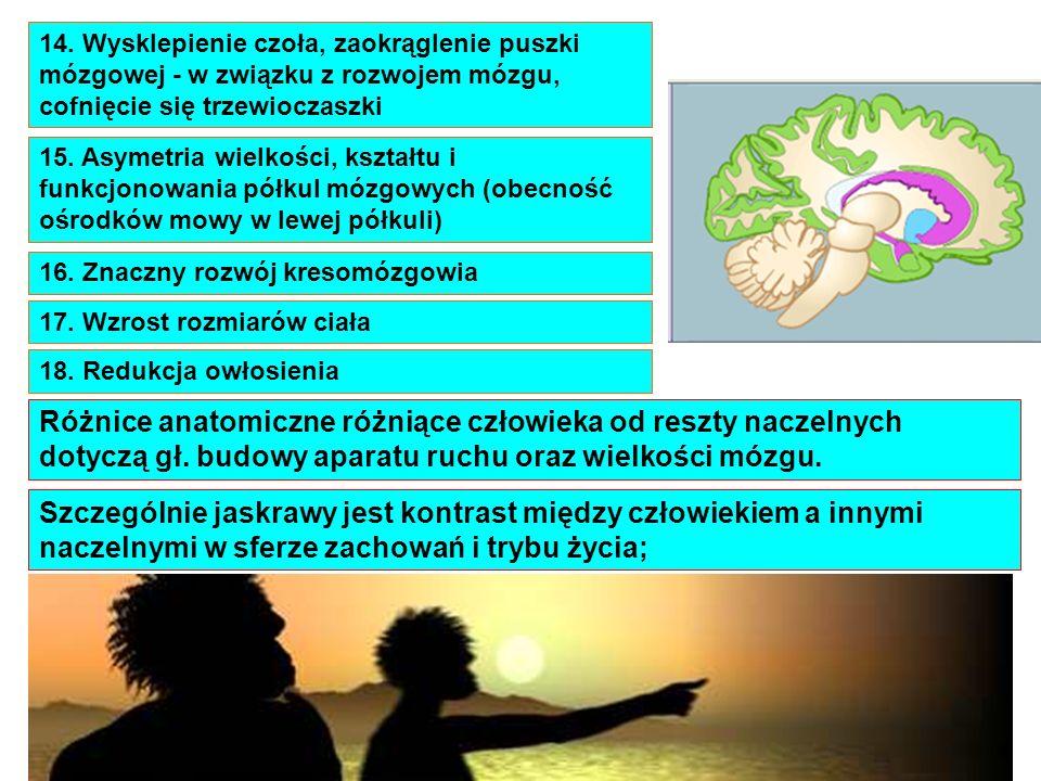 14. Wysklepienie czoła, zaokrąglenie puszki mózgowej - w związku z rozwojem mózgu, cofnięcie się trzewioczaszki