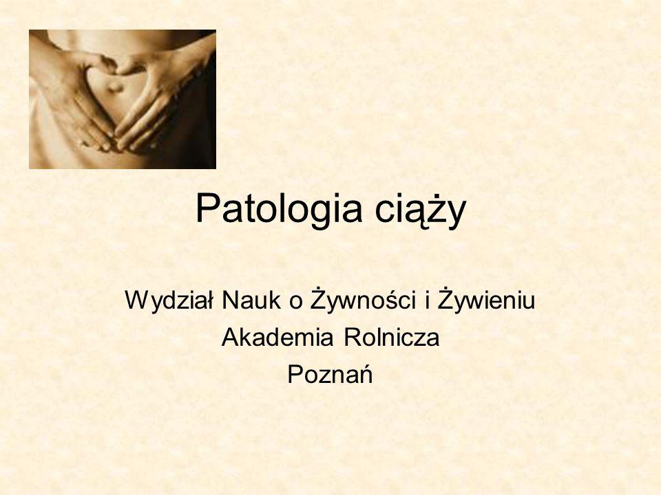 Wydział Nauk o Żywności i Żywieniu Akademia Rolnicza Poznań