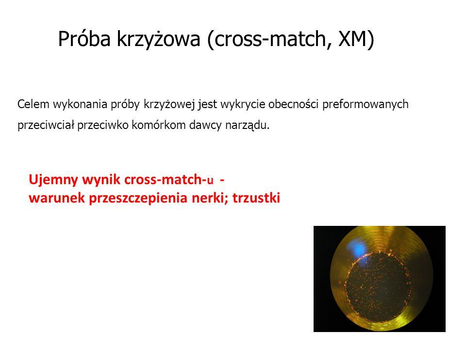 Próba krzyżowa (cross-match, XM)