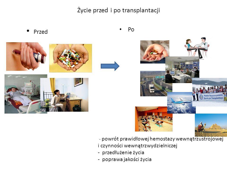 Życie przed i po transplantacji