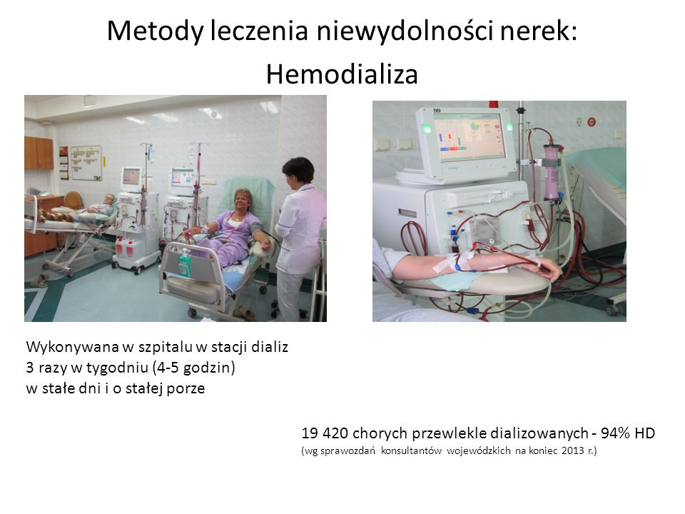 Metody leczenia niewydolności nerek: Hemodializa