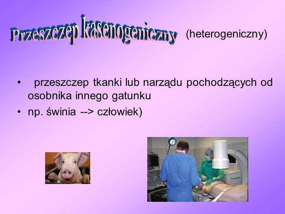 Przeszczep kasenogeniczny