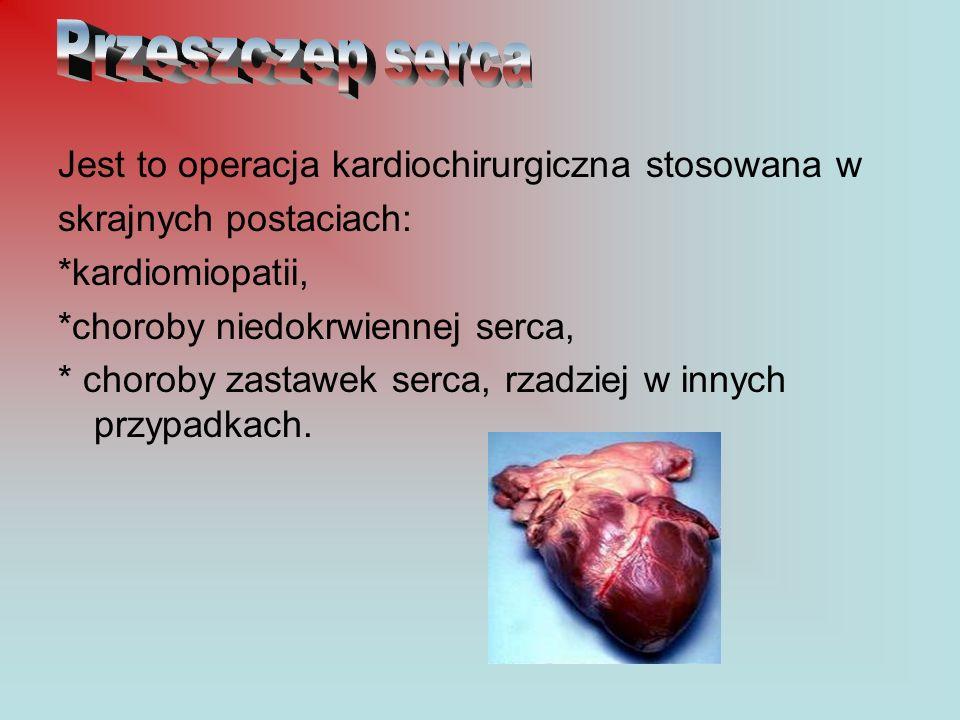 Przeszczep serca Jest to operacja kardiochirurgiczna stosowana w