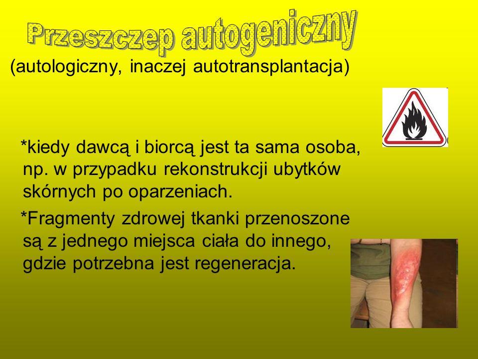 Przeszczep autogeniczny