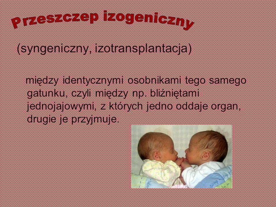 Przeszczep izogeniczny