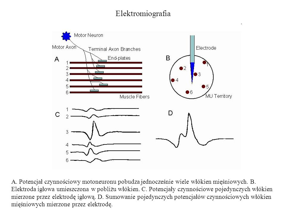 Elektromiografia