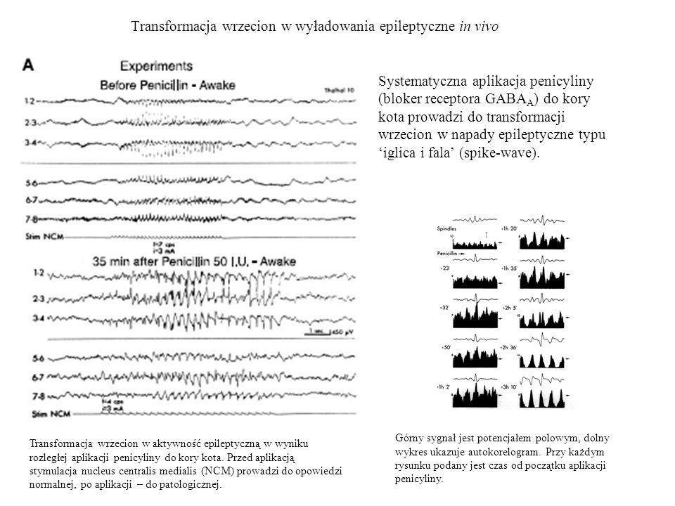 Transformacja wrzecion w wyładowania epileptyczne in vivo