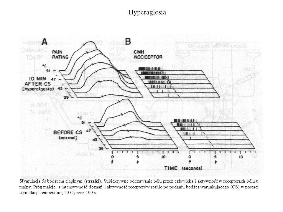 Hyperaglesia