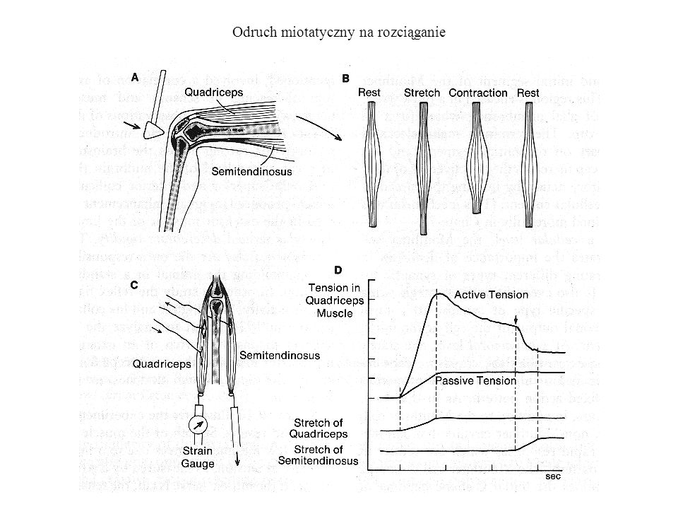 Odruch miotatyczny na rozciąganie