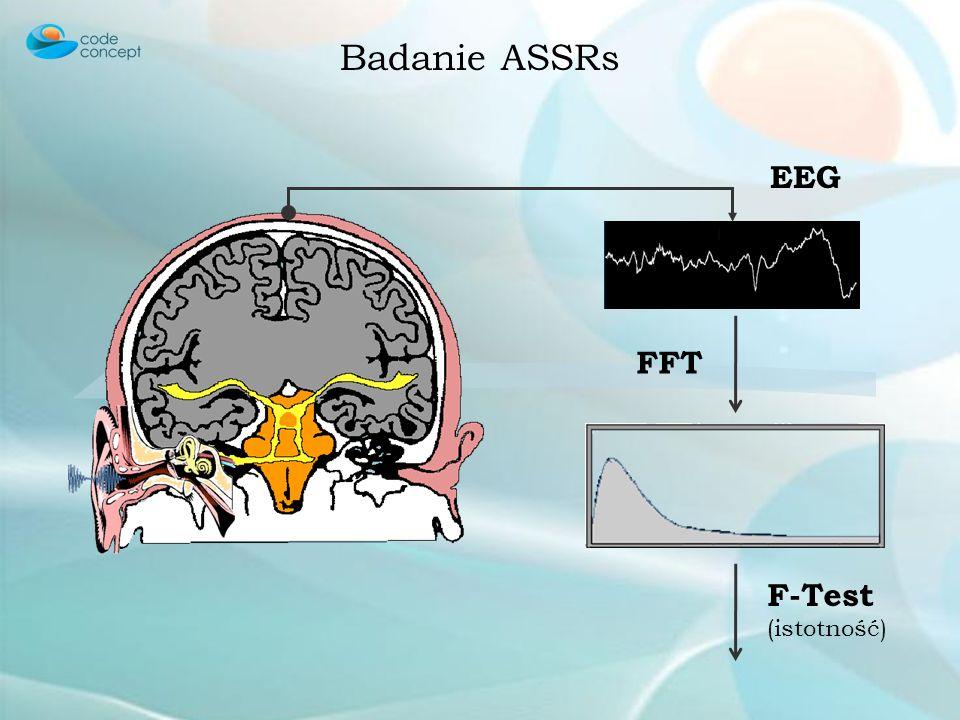 Badanie ASSRs EEG FFT F-Test (istotność)