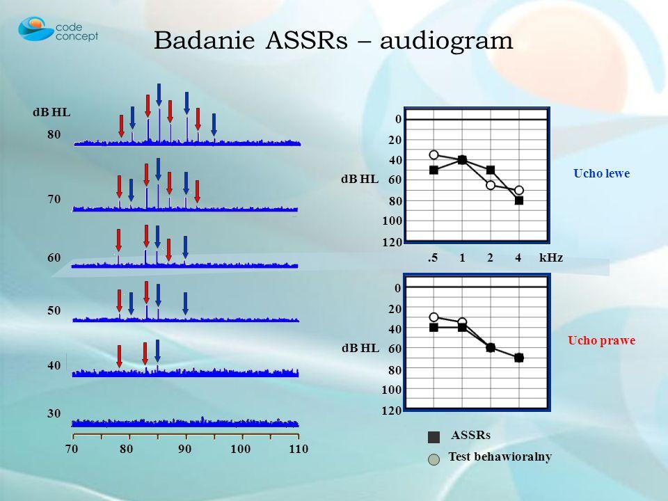 Badanie ASSRs – audiogram