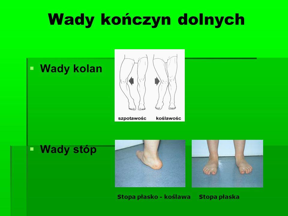 Wady kończyn dolnych Wady kolan Wady stóp Stopa płasko - koślawa