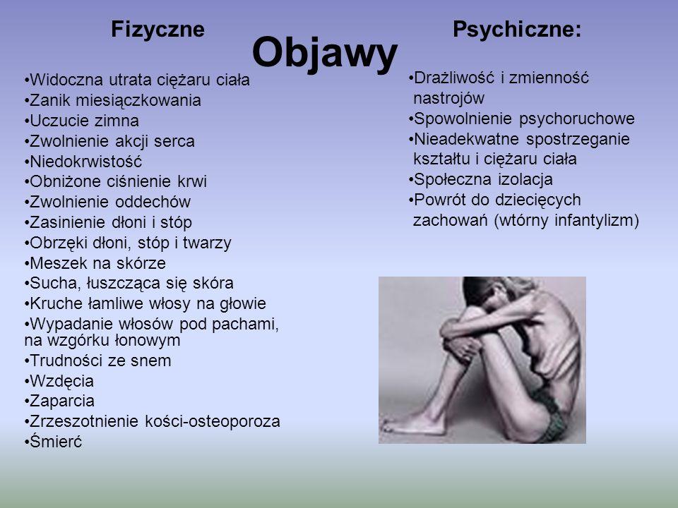Objawy Fizyczne Psychiczne: Widoczna utrata ciężaru ciała