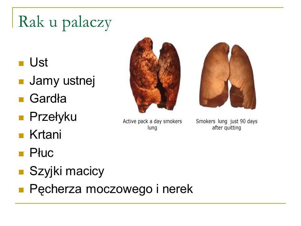 Rak u palaczy Ust Jamy ustnej Gardła Przełyku Krtani Płuc