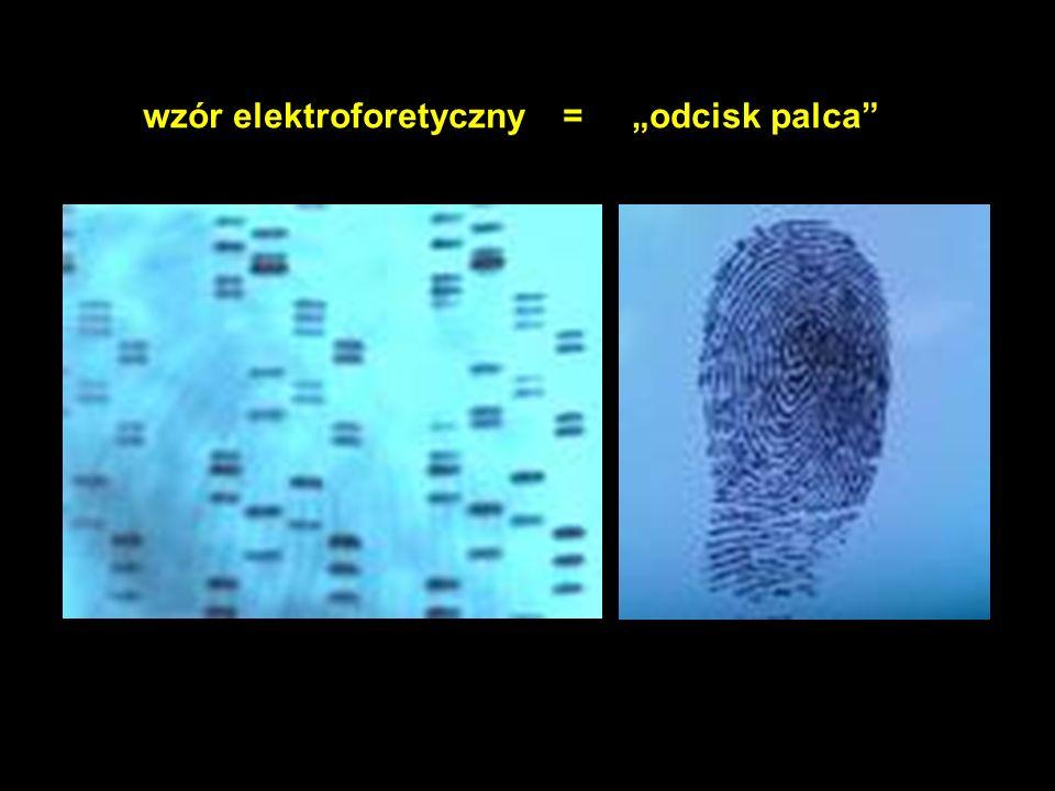 """wzór elektroforetyczny = """"odcisk palca"""