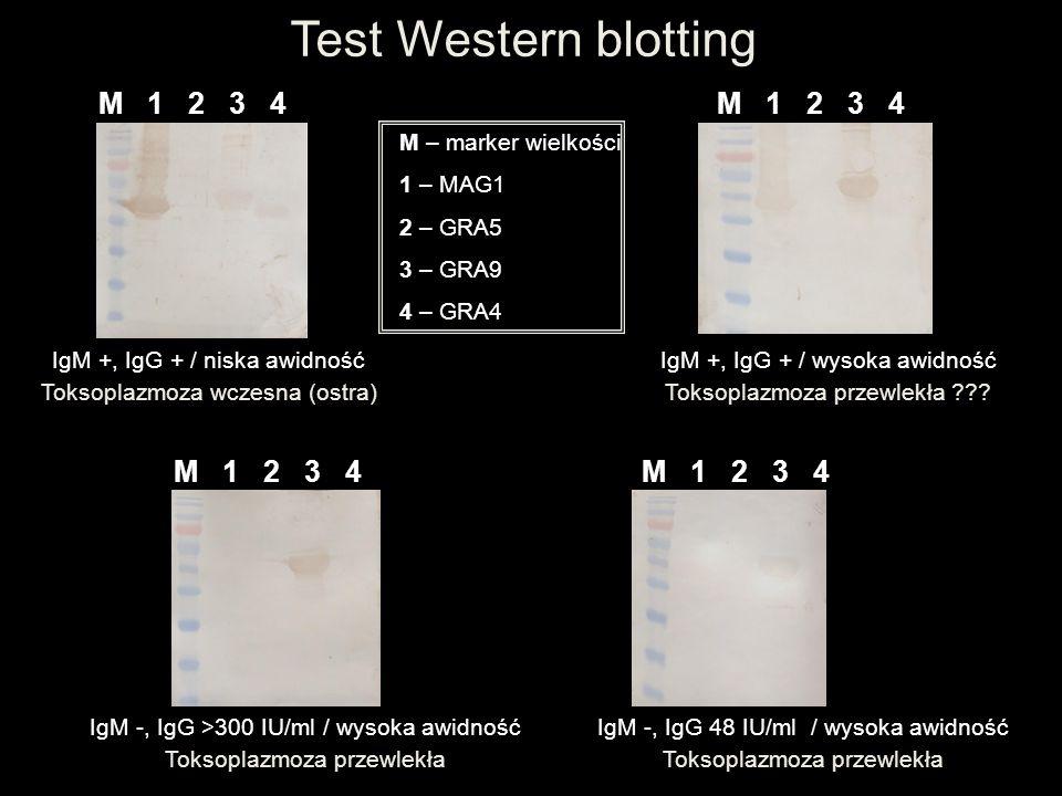 Test Western blotting M 1 2 3 4 M 1 2 3 4 M 1 2 3 4 M 1 2 3 4
