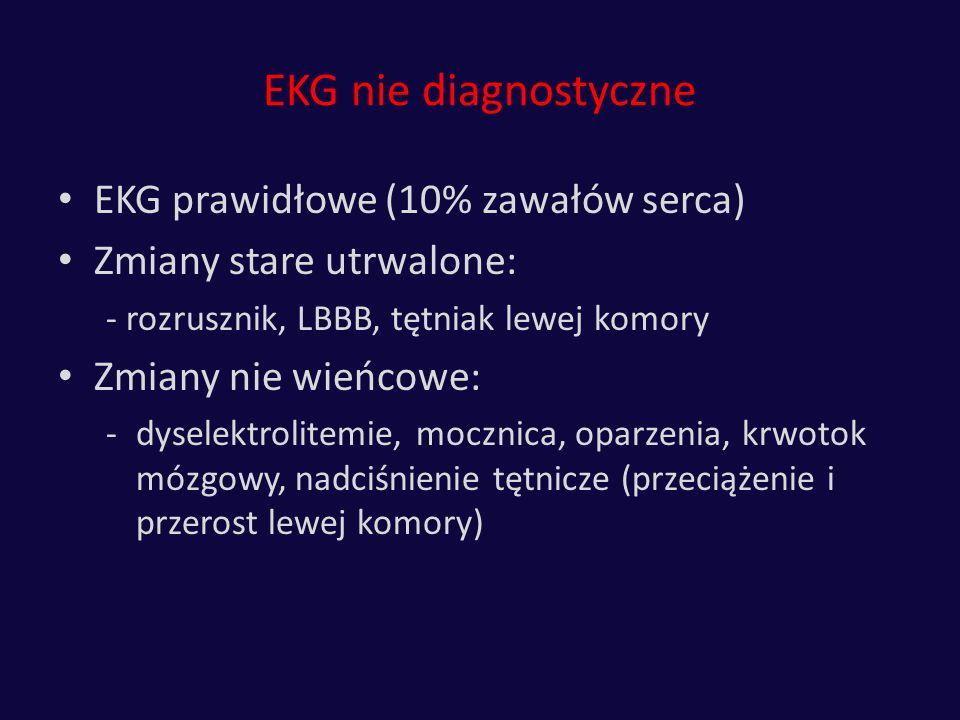 EKG nie diagnostyczne EKG prawidłowe (10% zawałów serca)