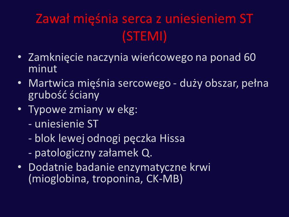 Zawał mięśnia serca z uniesieniem ST (STEMI)