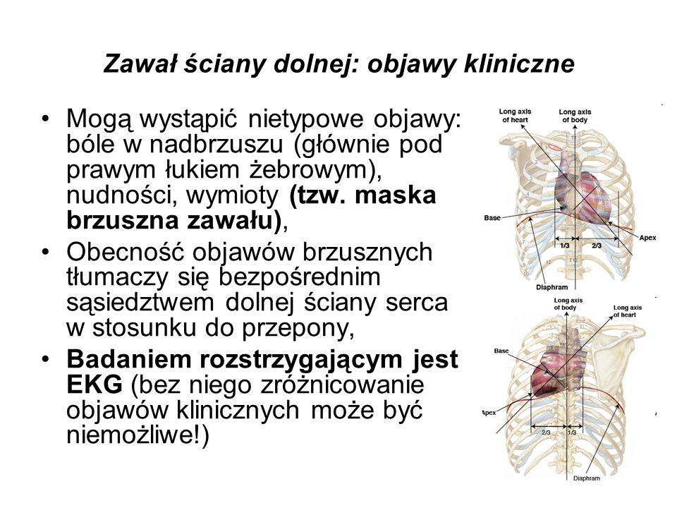 Zawał ściany dolnej: objawy kliniczne