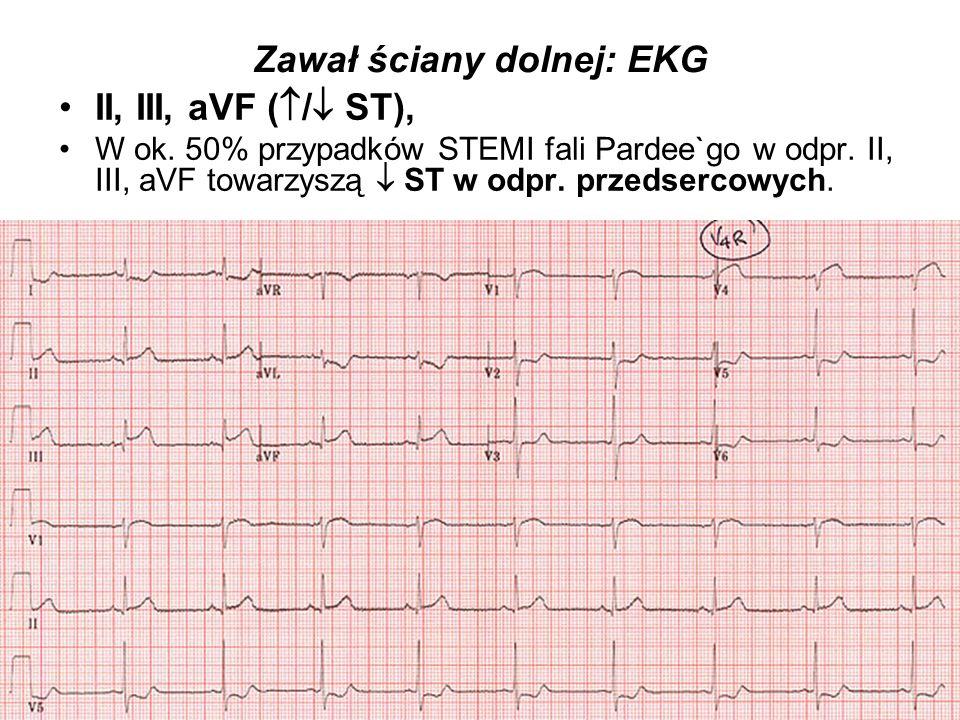 Zawał ściany dolnej: EKG
