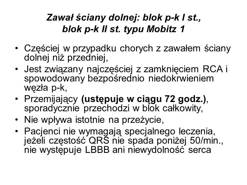 Zawał ściany dolnej: blok p-k I st., blok p-k II st. typu Mobitz 1
