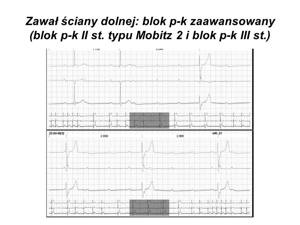 Zawał ściany dolnej: blok p-k zaawansowany (blok p-k II st