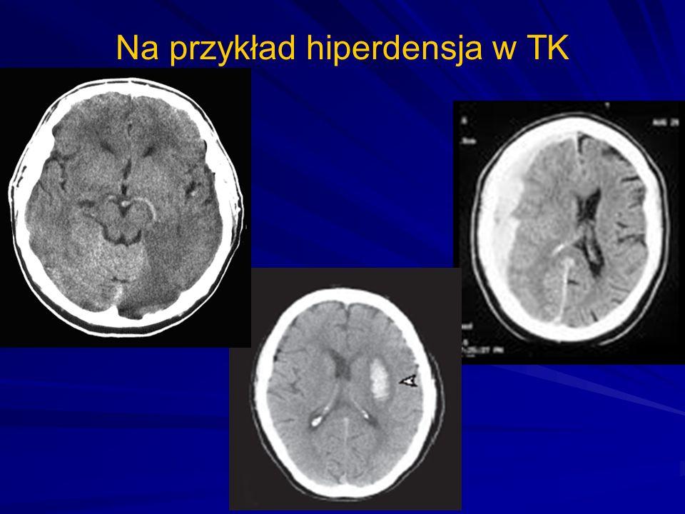 Na przykład hiperdensja w TK