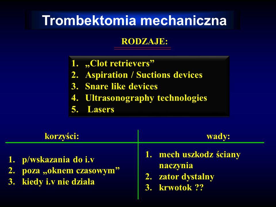 Trombektomia mechaniczna