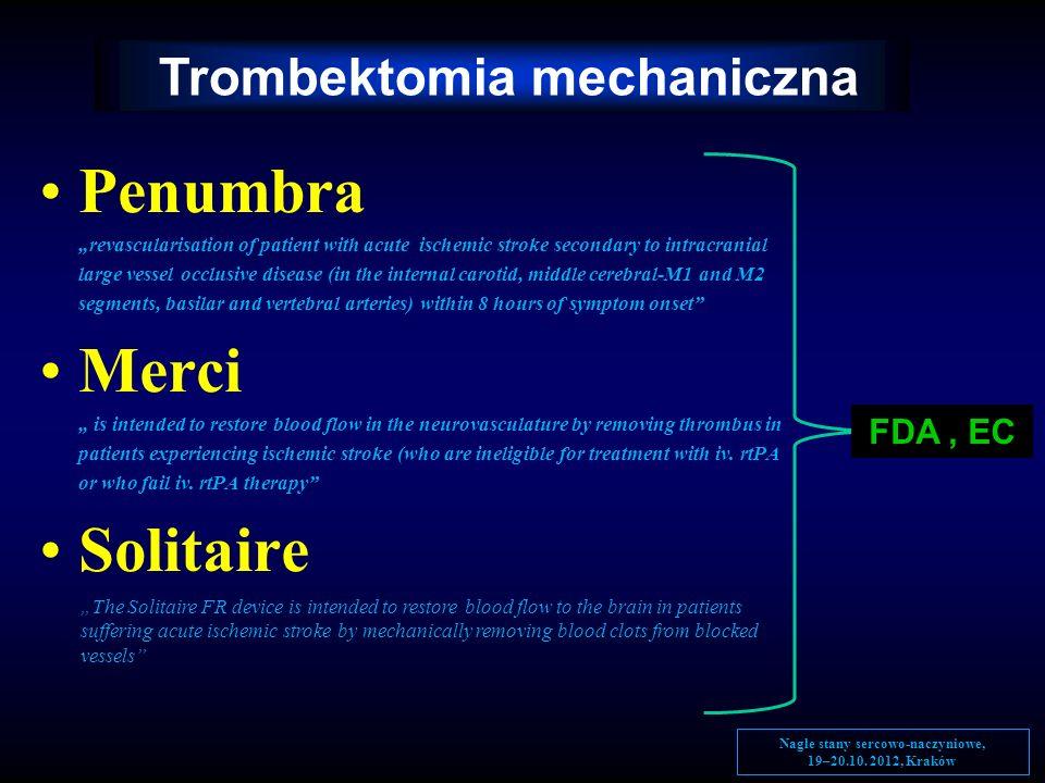 Trombektomia mechaniczna Nagłe stany sercowo-naczyniowe,