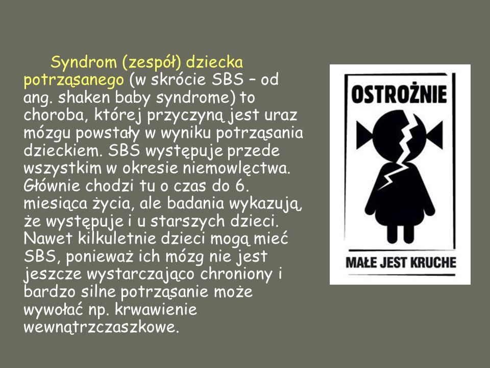 Syndrom (zespół) dziecka potrząsanego (w skrócie SBS – od ang