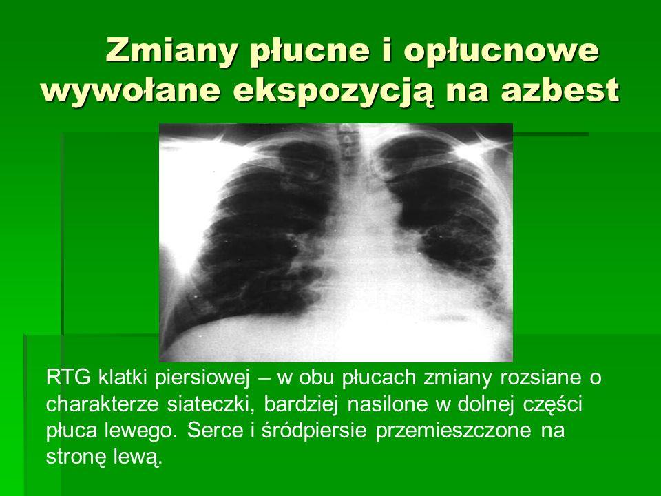 Zmiany płucne i opłucnowe wywołane ekspozycją na azbest