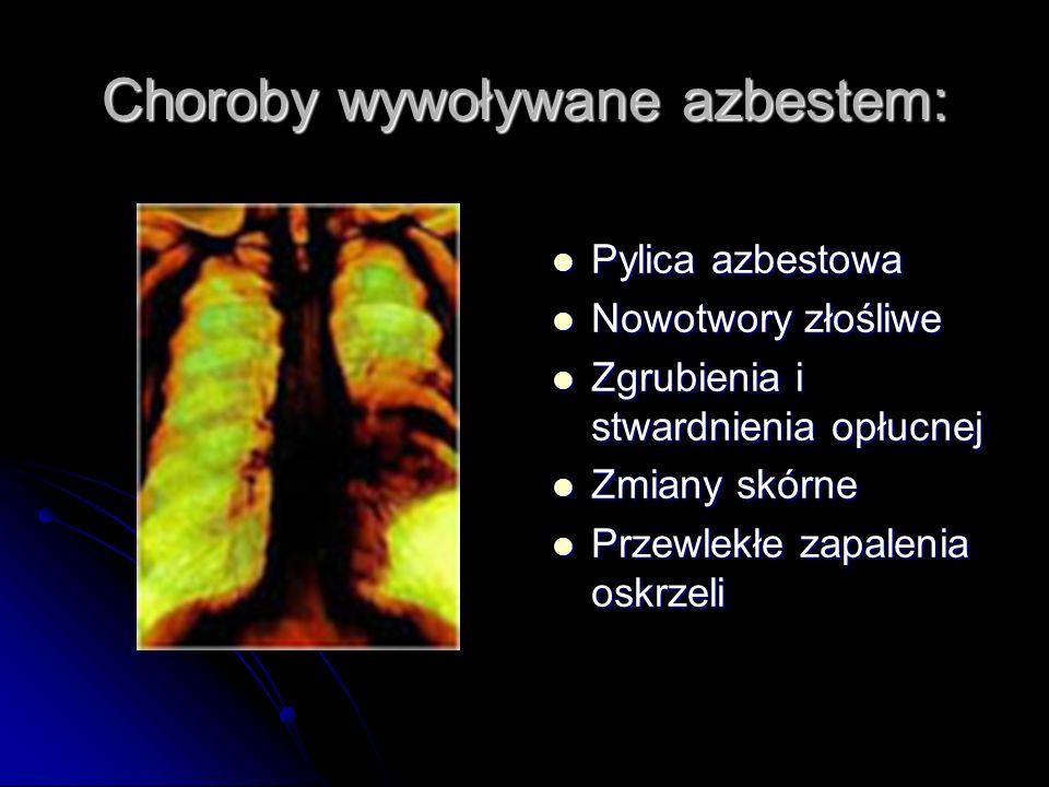 Choroby wywoływane azbestem: