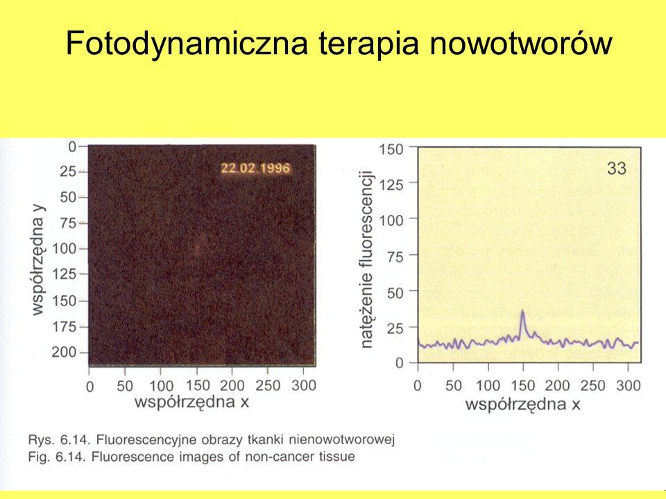 Fotodynamiczna terapia nowotworów