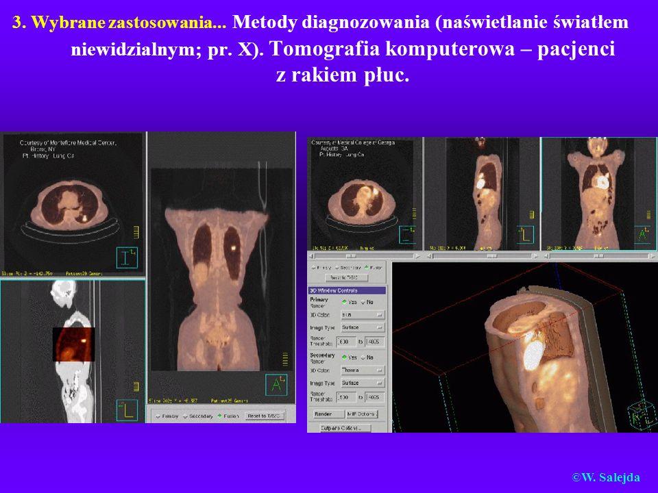 3. Wybrane zastosowania... Metody diagnozowania (naświetlanie światłem niewidzialnym; pr. X). Tomografia komputerowa – pacjenci z rakiem płuc.
