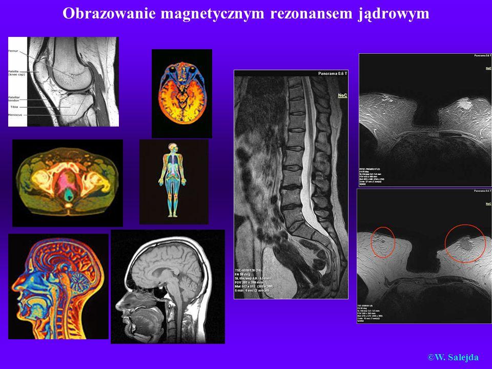Obrazowanie magnetycznym rezonansem jądrowym