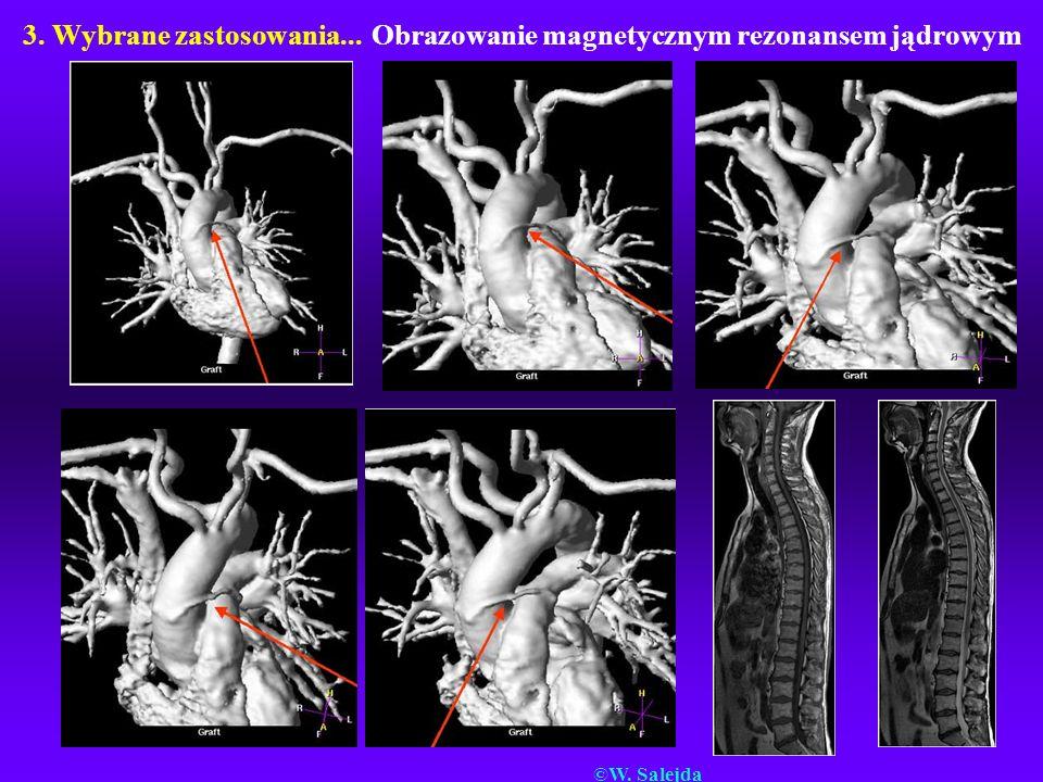 3. Wybrane zastosowania... Obrazowanie magnetycznym rezonansem jądrowym