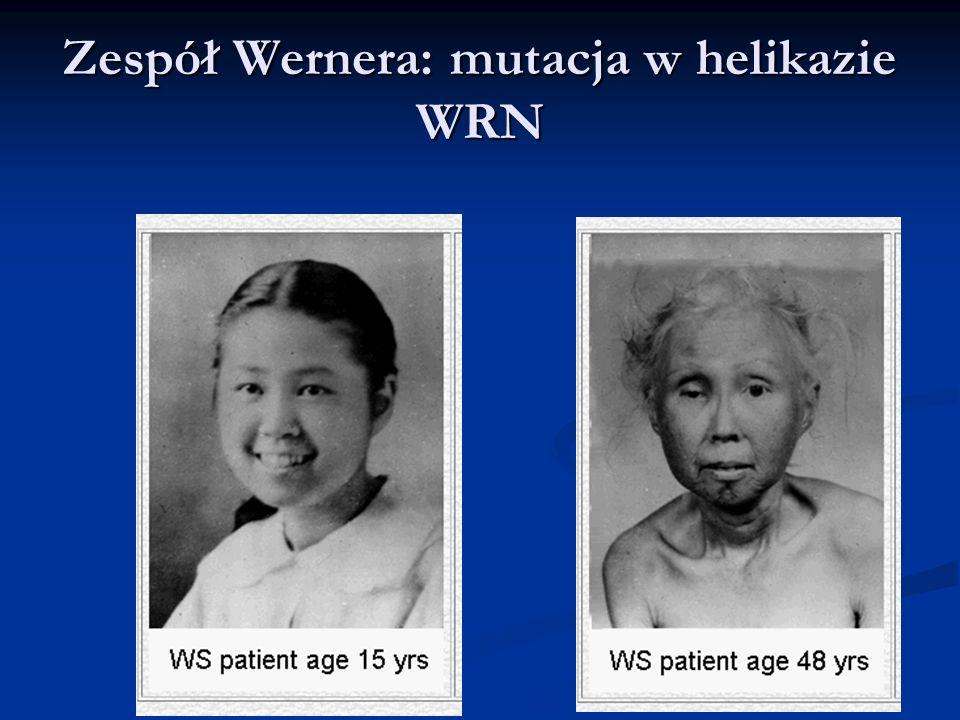 Zespół Wernera: mutacja w helikazie WRN