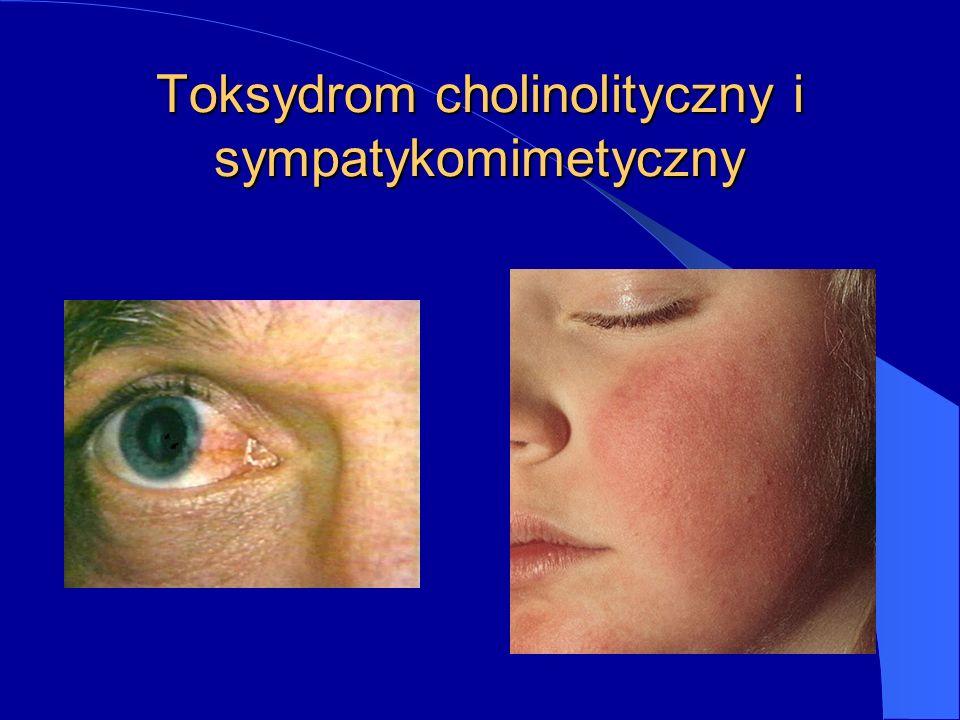 Toksydrom cholinolityczny i sympatykomimetyczny